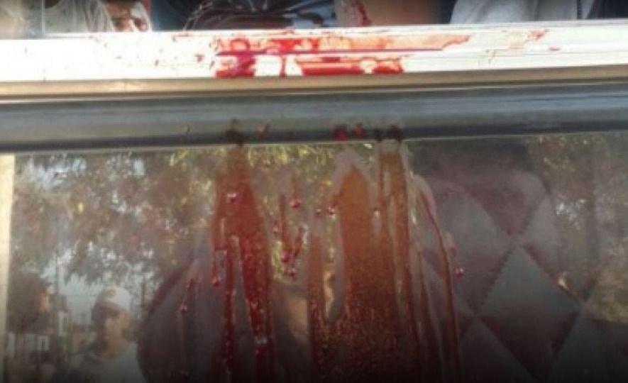 IMÁGENES SENSIBLES| Las fotos más crudas del chofer asesinado a tiros