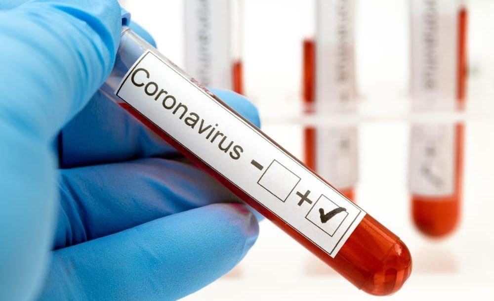 Coronavirus: 8 nuevos cosos positivos en Mendoza